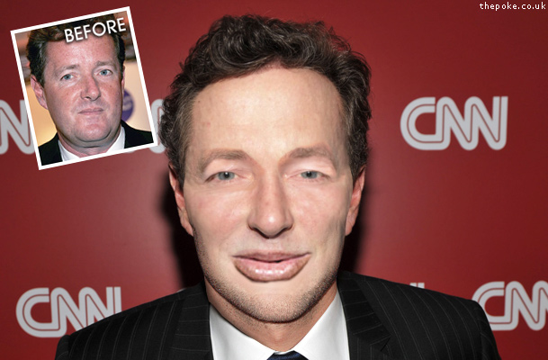 piers morgan facelift