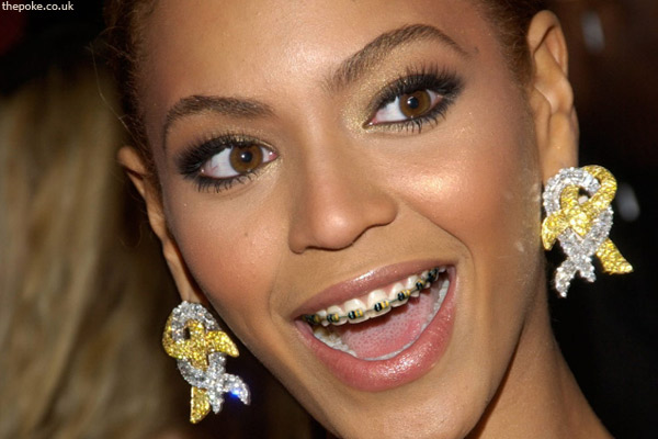 Beyoncé gets braces