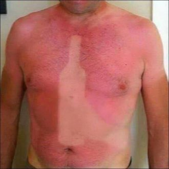 Simply 11 unfortunate sunburns that are a painful lesson for us all